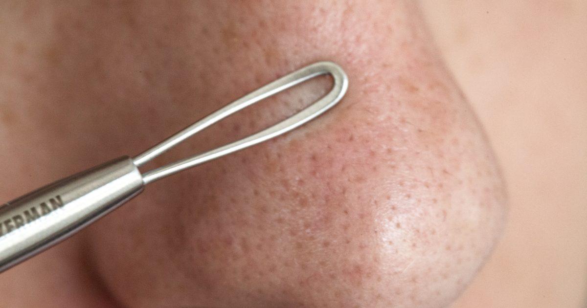 Как выдавить угорь на носу