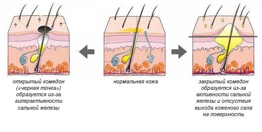 Fresh line гермес гель очищающий для лица для проблемной кожи состав