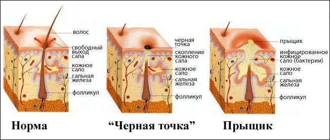 Народные средства при лечении низкого давления